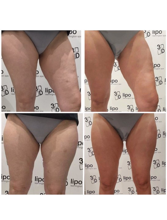 after 3d lipo