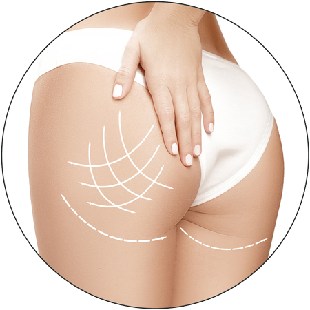 3D Body RF treatment at 3d lipo leamington