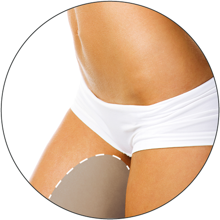 D Lipo Leamington Spa