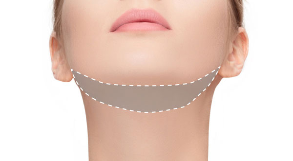 3d lipo clinic leamington 3D - Chin Freeze