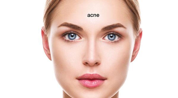 3d lipo clinic leamington 3D Prescriptive Facial to target Acne