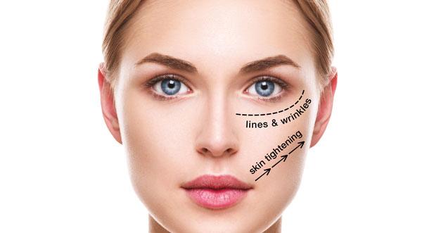 3D – Bespoke Anti-Ageing Facial treatment at 3d lipo leamington