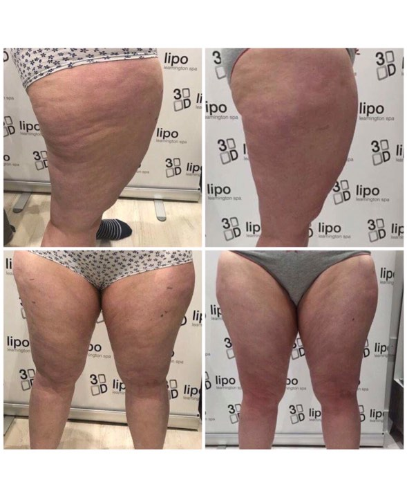 before 3d lipo