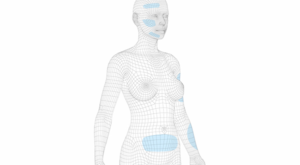 3d lipo clinic leamington 3D - Body Scanning