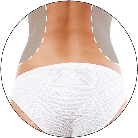 3D Body HIFU treatment at 3d lipo leamington