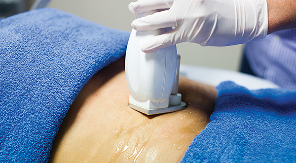 3d lipo clinic leamington 3D Cryofuse
