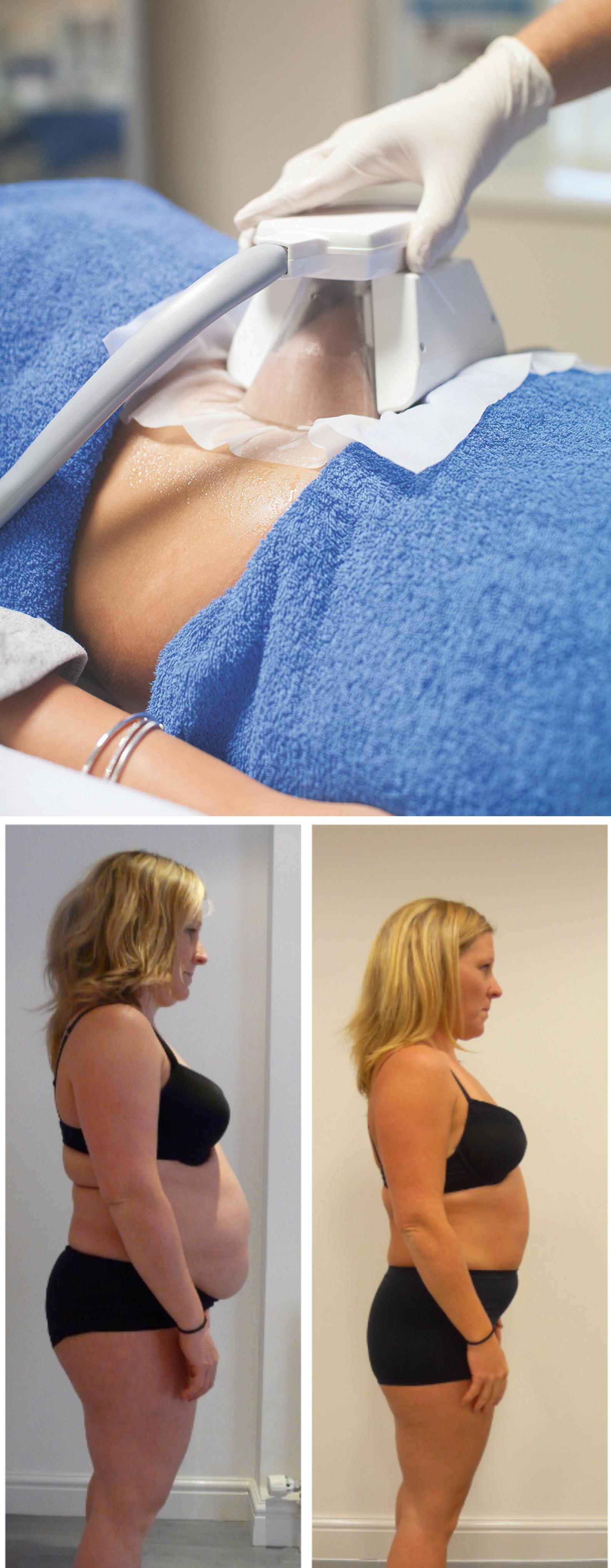 3D-Fat Freezing at 3D-lipo Leamington Spa treatment at 3d lipo leamington