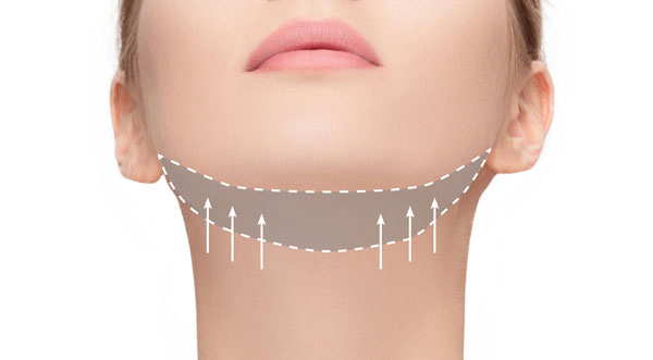 3d lipo clinic leamington 3D - Chin Sculpting & Tightening