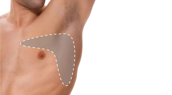 Man Boobs treatment at 3d lipo leamington
